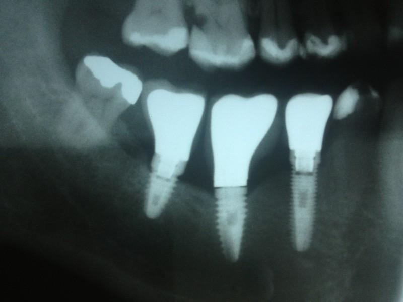Dental Implants Importance
