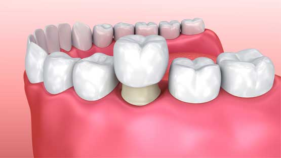 Porcelain Crowns- Family Dentist in Brooklyn,MN | Brooklyn Blvd Dental