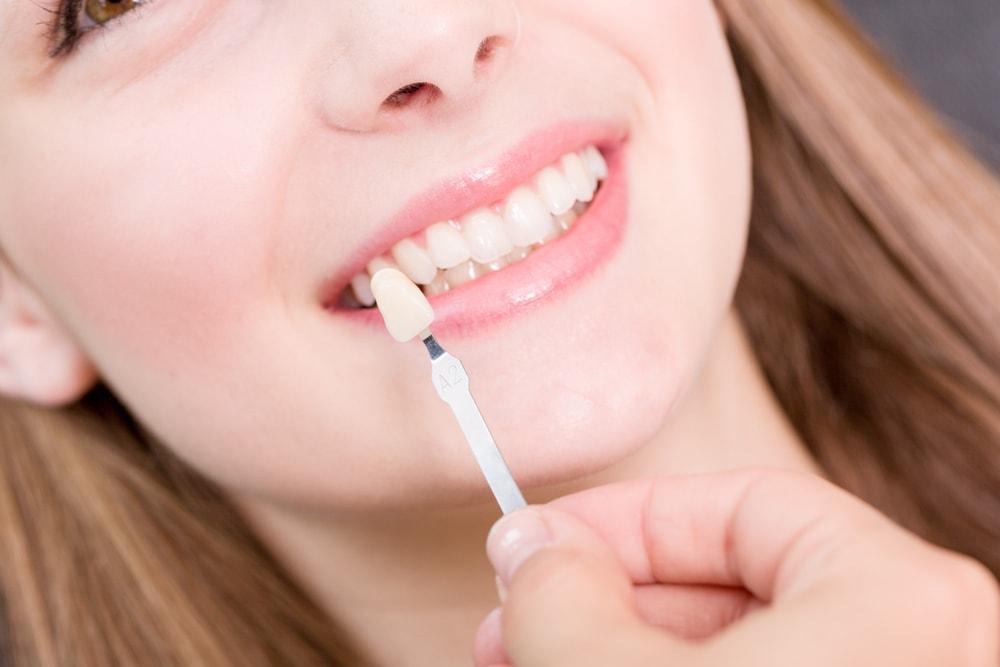 Dental Crowns | Family Dentist in Brooklyn, MN | Brooklyn Blvd. Dental