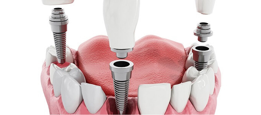 Dental Implants and Its Myths | Best Dentist at Brooklyn blvd dental